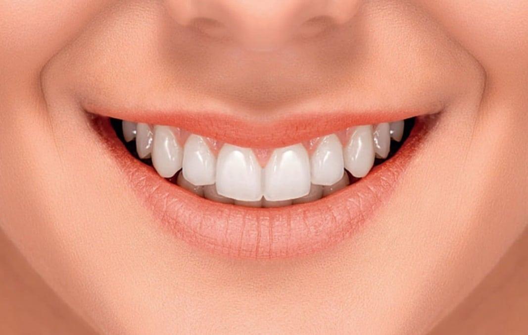 Sourire avec des dents blanches